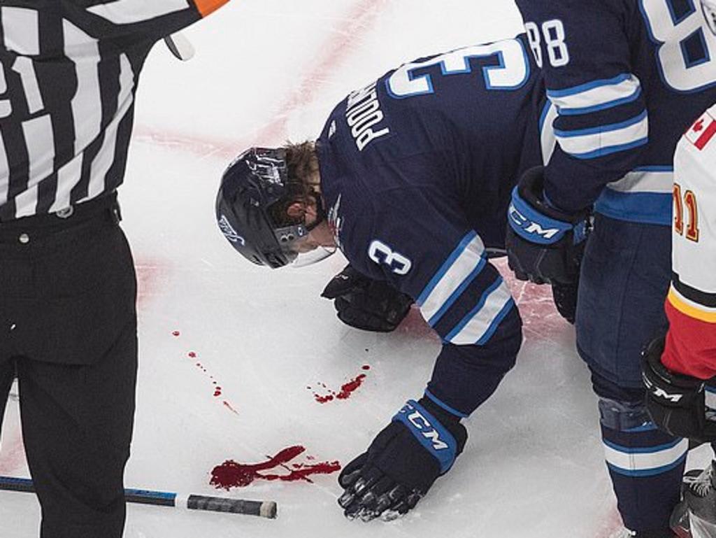 Jugador de hockey recibe un golpe en la cara y deja un rastro de sangre sobre el hielo