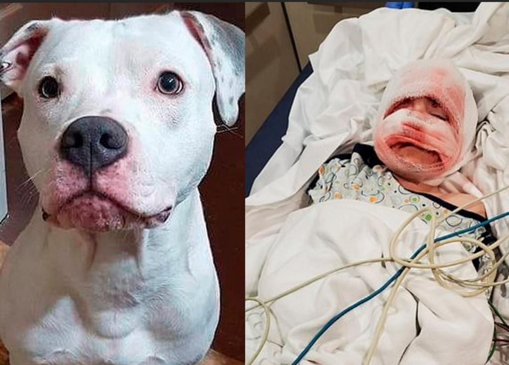 Niño de 6 años es atacado por su Pit Bull y queda con cicatrices de por vida