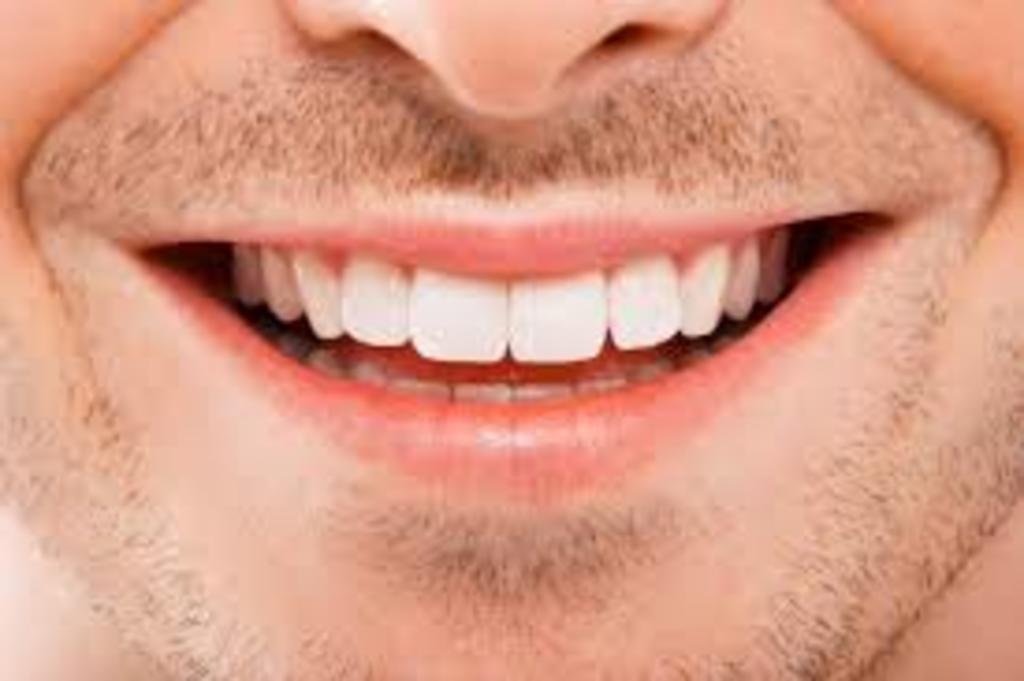 A través de sarro dental, científicos rastrean drogas del siglo XIX