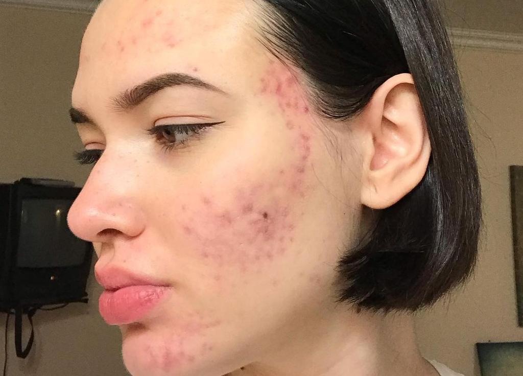 ¿Cómo identificar problemas de salud por medio del acné?