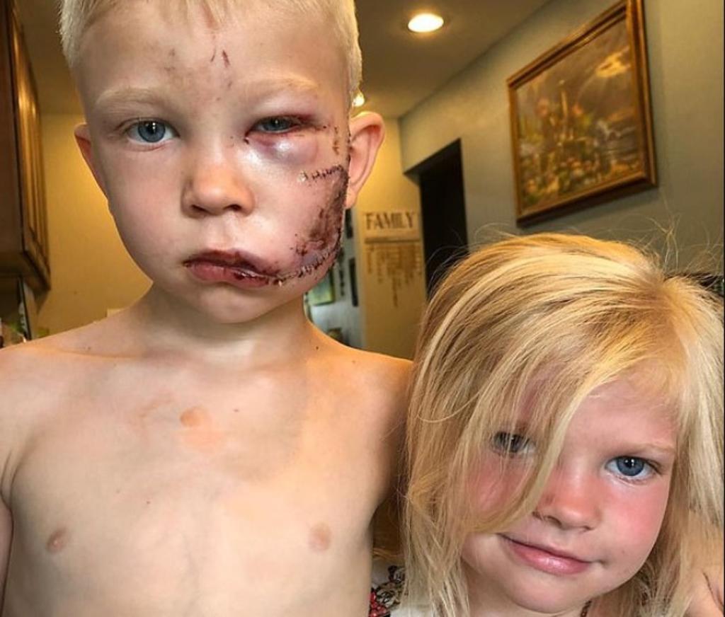 Así se ha recuperado Bridger tras salvar a su hermana del ataque de un Pitbull