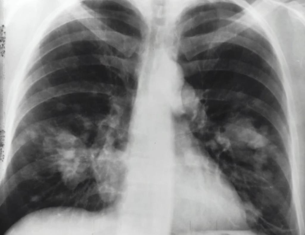 Aseguran que COVID-19 daña más los pulmones que el cigarro