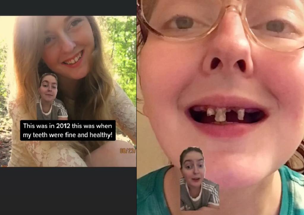 Mujer comparte el deterioro de sus dientes por tomar tanto refresco