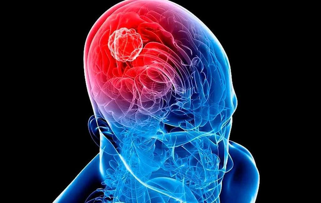 Hallan terapia que mejoraría supervivencia de pacientes con tumor cerebral