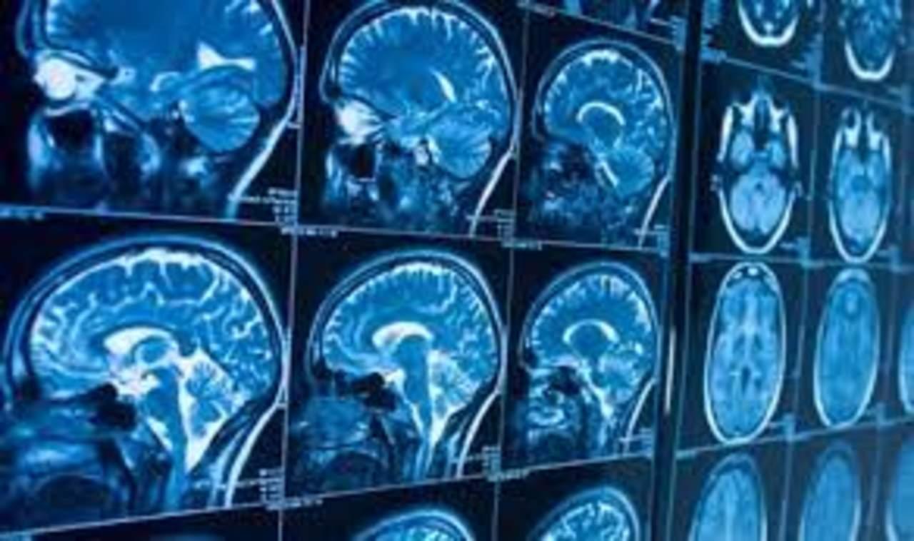 COVID-19 no infectaría el cerebro pero sí dejaría severos daños