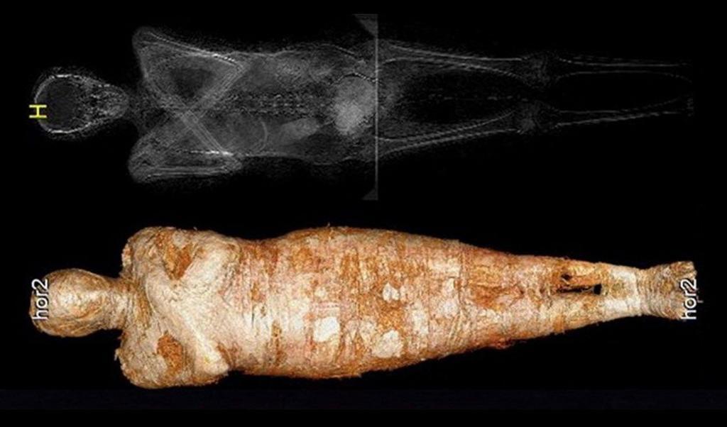 Hallan primer caso de momia egipcia de una embarazada