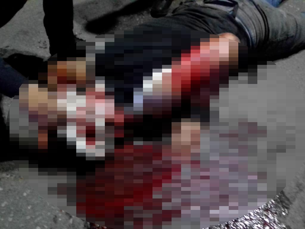Grave, motociclista tras sufrir accidente en Gómez Palacio