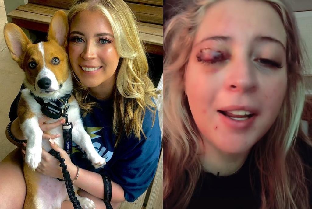 Mujer acude a colocarse pestañas y termina sin párpado al ser atacada por un perro