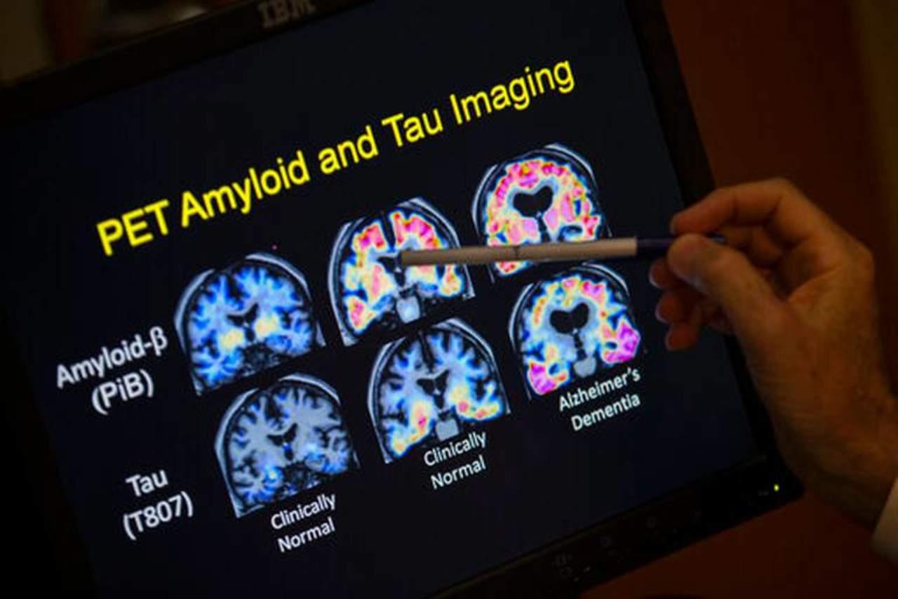 Hallan cobre y hierro elementales en cerebro de dos pacientes de alzheimer
