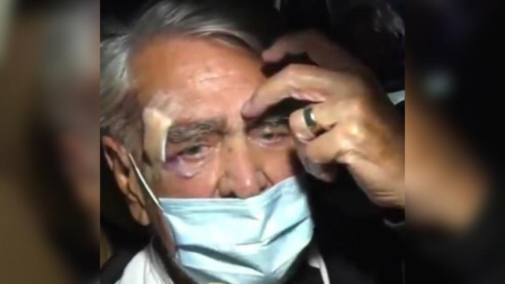 Eric del Castillo revela las heridas que lo llevaron a urgencias