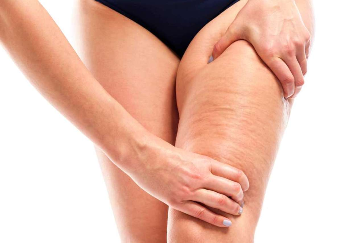 Celulitis, entre hormonas y grasa