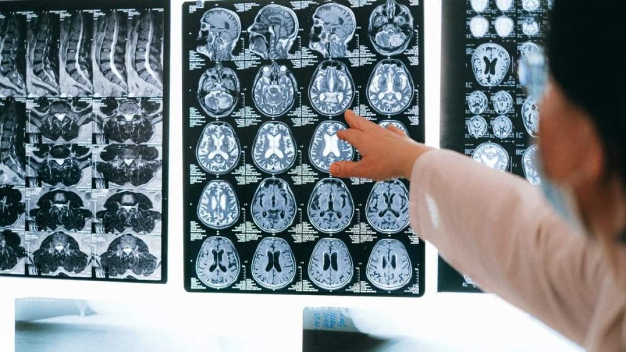 Un estudio sugiere un posible vínculo entre el hígado y el alzheimer